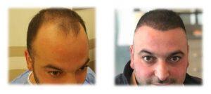 fue saç ekimi öncesi ve sonrası