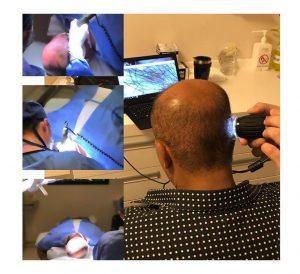 ücretsiz saç analizi