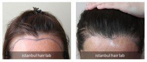 istanbul hair lab